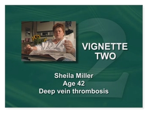 Sheila Miller Age 42 Deep Vein Thrombosis